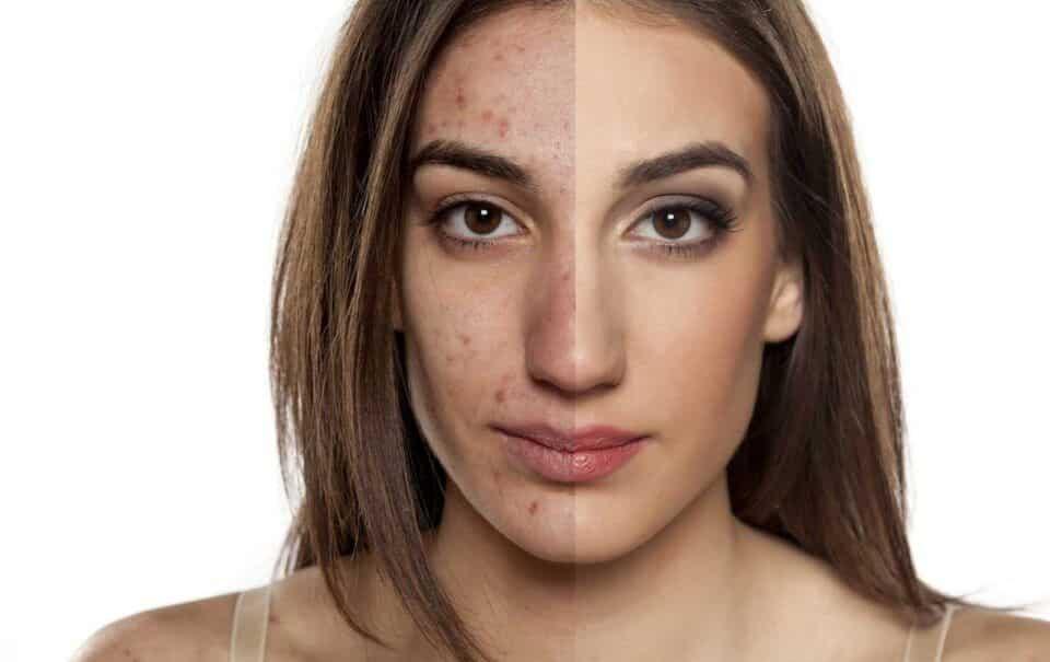 Espinhas hormonais – Influência dos hormônios sobre a pele