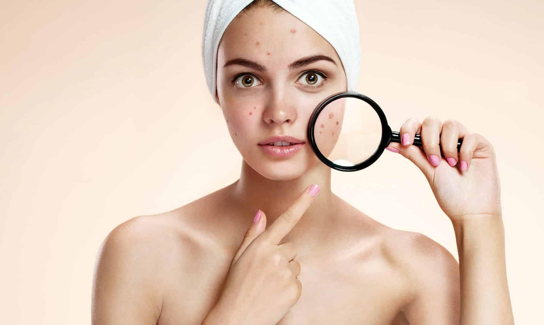 espinhas hormonais influencia dos hormonios sobre a pele 1 - Granos hormonales: influencia de las hormonas en la piel