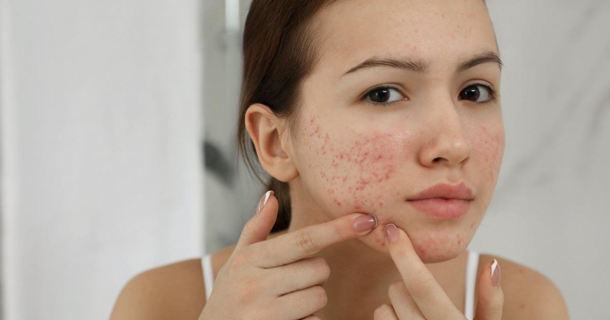 espinhas hormonais influencia dos hormonios sobre a pele 3 - Granos hormonales: influencia de las hormonas en la piel