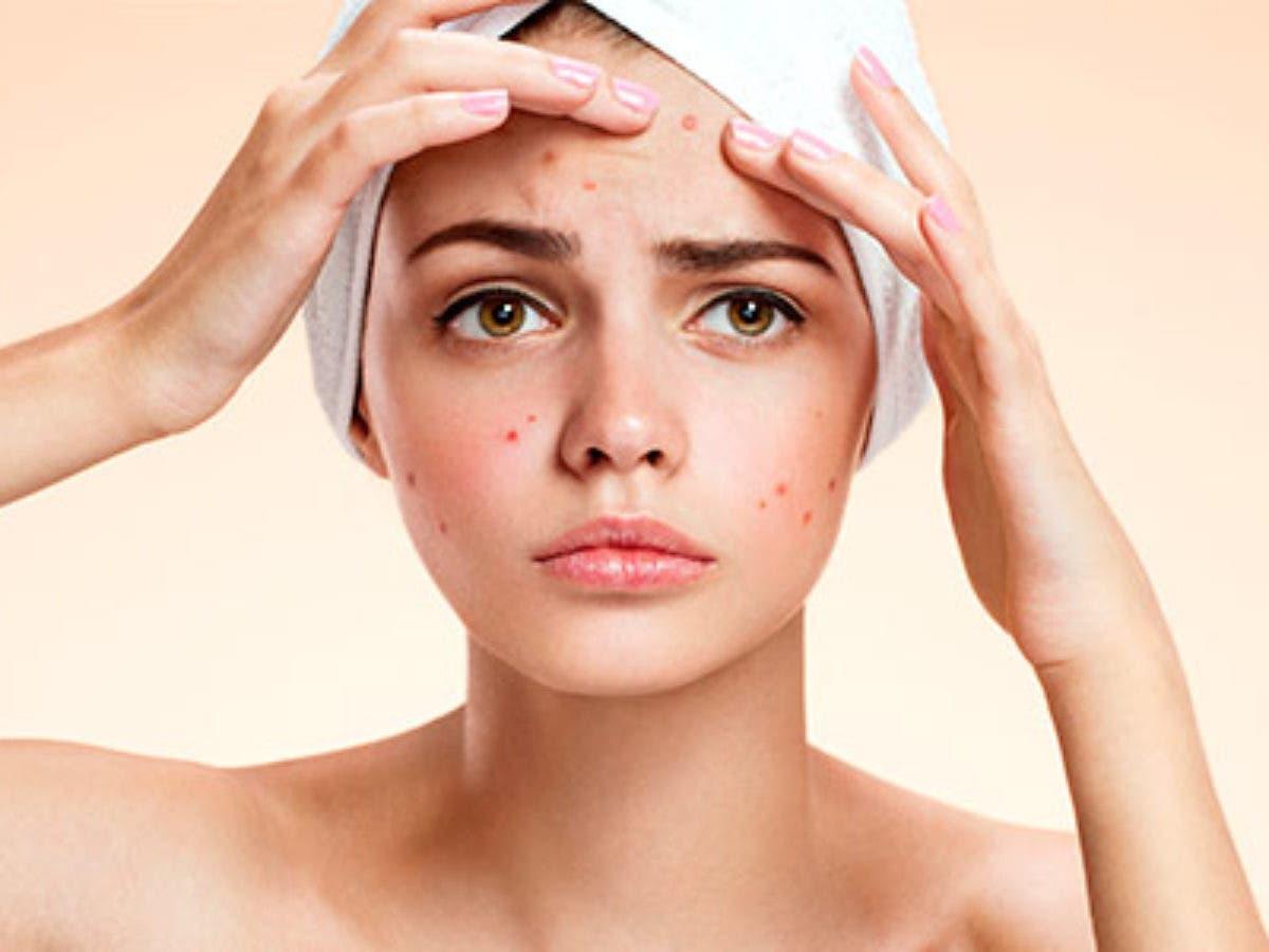 espinhas hormonais influencia dos hormonios sobre a pele - Granos hormonales: influencia de las hormonas en la piel