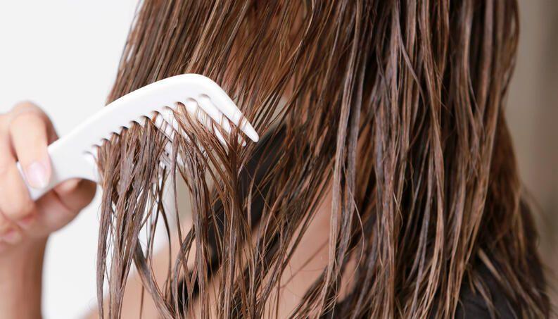 o que e alopecia causas e tratamentos da queda de cabelo 2 - ¿Qué es la alopecia?  Causas y tratamientos para la caída del cabello.