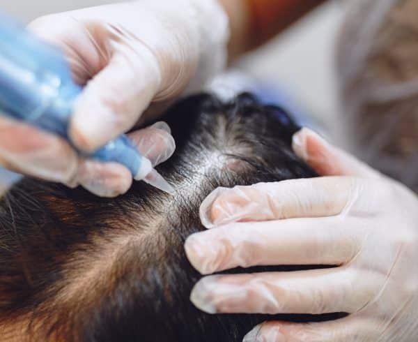 o que e alopecia causas e tratamentos para queda de cabelo 1 - ¿Qué es la alopecia?  Causas y tratamientos para la caída del cabello.