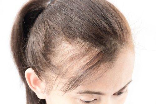 o que e alopecia causas e tratamentos para queda de cabelo - ¿Qué es la alopecia?  Causas y tratamientos para la caída del cabello.