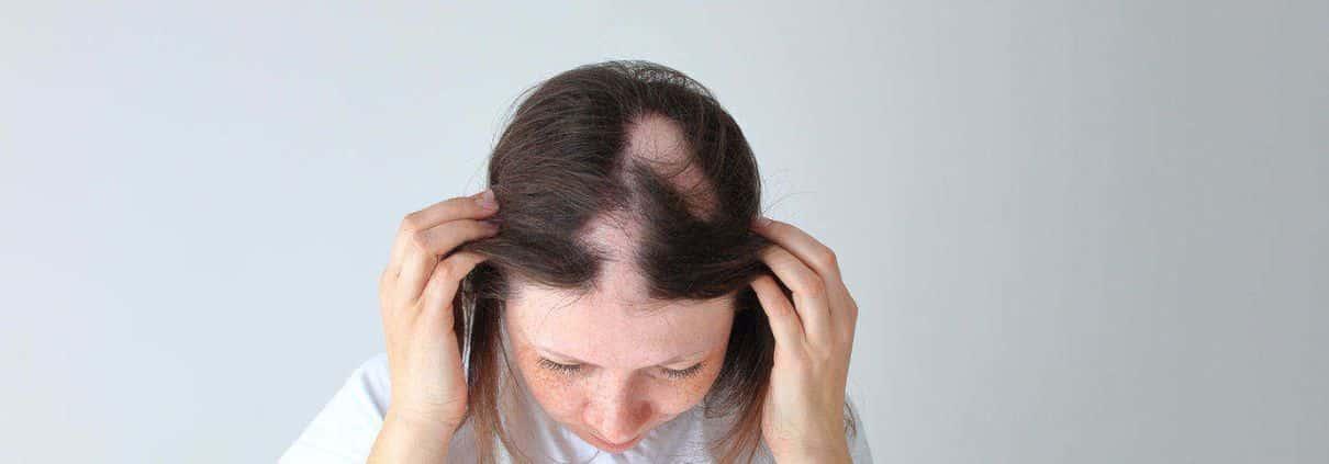 o que e alopecia - ¿Qué es la alopecia?  Causas y tratamientos para la caída del cabello.
