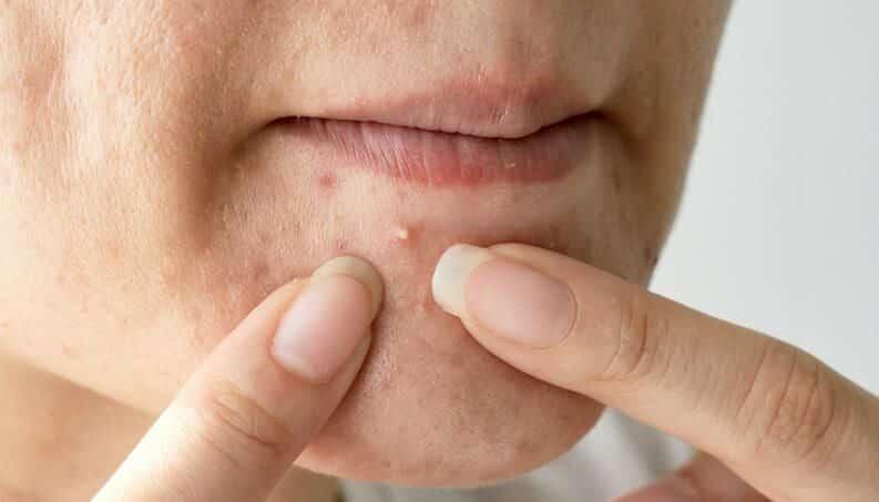 Tipos de espinhas – Diferenças, tratamentos e prevenção para acnes