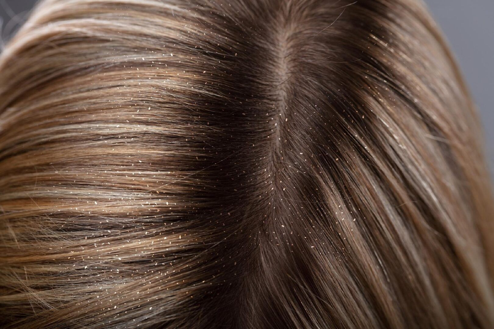 Benefícios do vinagre de maçã no cabelo + receitas caseiras