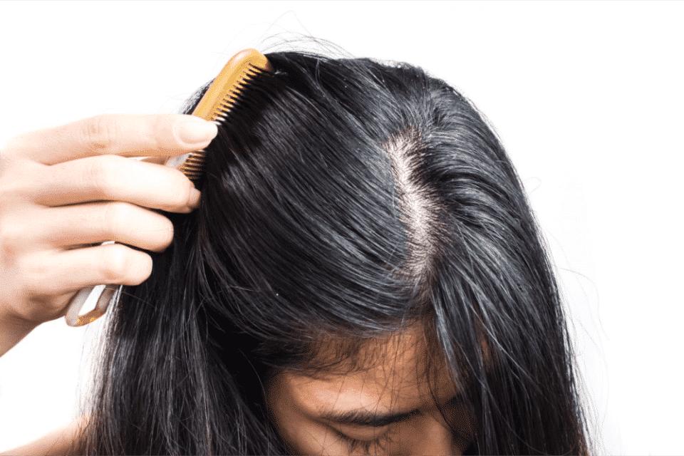 Cabelo oleoso – Causas, cuidados e formas de acabar com a oleosidade