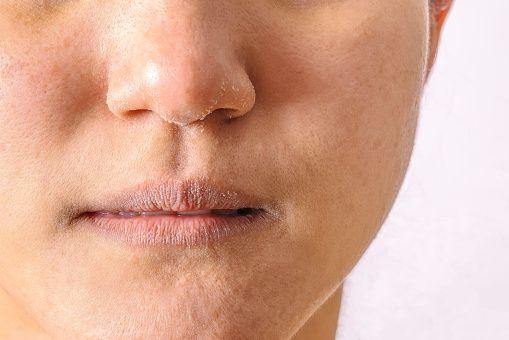 Hidratação da pele: Entenda a importância dessa prática e como realizá-la