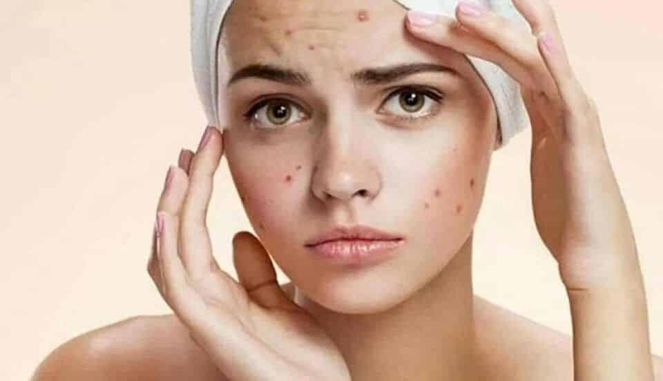 Manchas de acne – Dicas do que fazer para clarear e prevenir as marcas