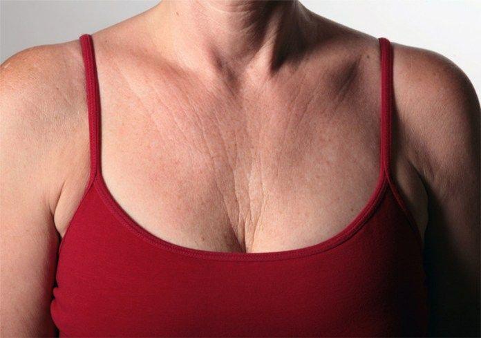 Rugas no colo – Principais causas, prevenção e tratamentos