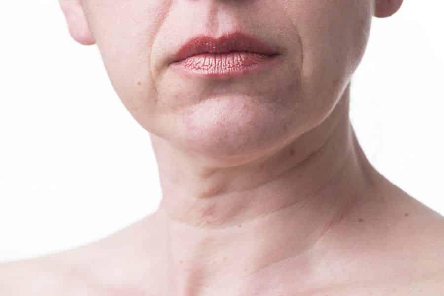 Rugas no pescoço – Como surgem e como evitá-las