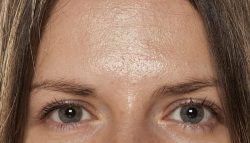 Oleosidade – Características da pele oleosa + como lidar