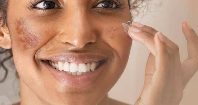 Pele negra - saiba quais são suas características e principais cuidados