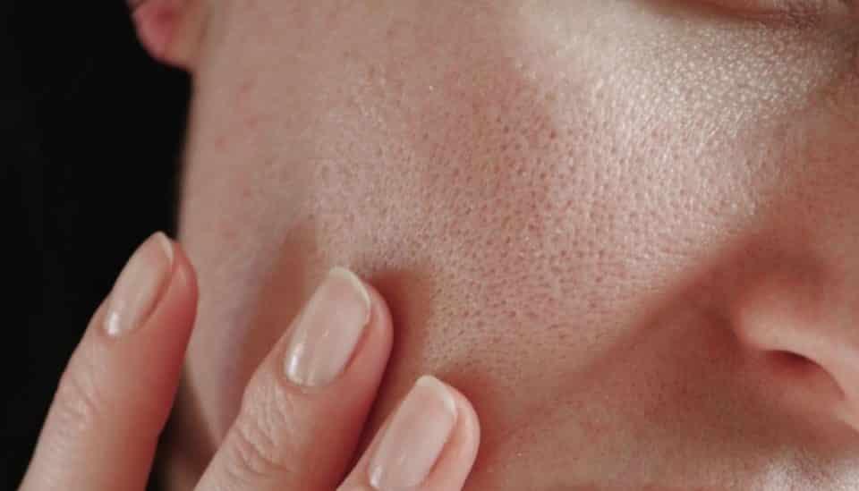 Furinhos no rosto – Prevenção e tratamentos para remoção