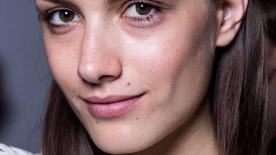 O que causa olheiras? Conheça os 4 tipos e como tratar